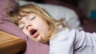 Photo of مرض اللحمية الذي يصيب الأطفال