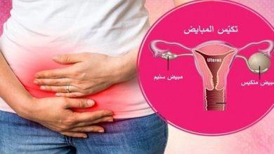 Photo of هل تعرف ما هي حالة تكيس الرحم ؟
